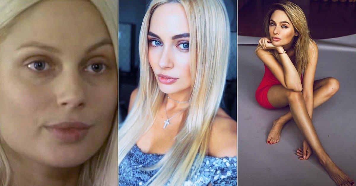 Наталья рудова до и после пластики фото