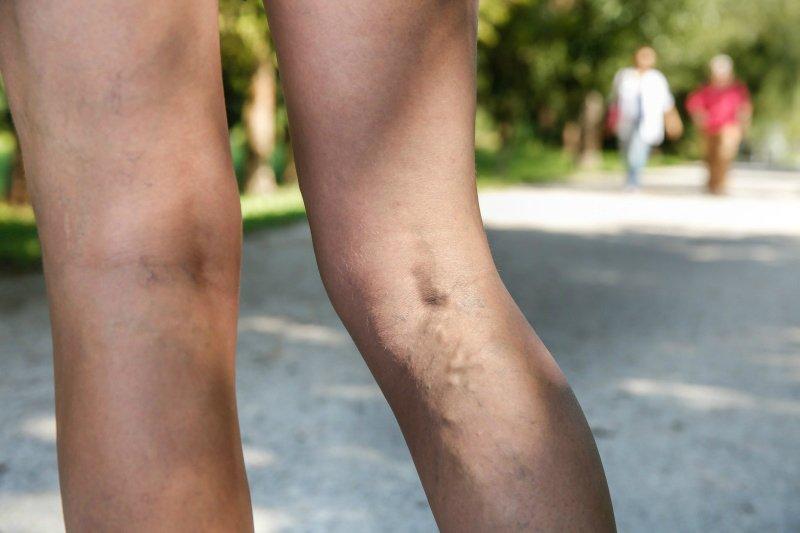 тромбоз и варикоз на ногах