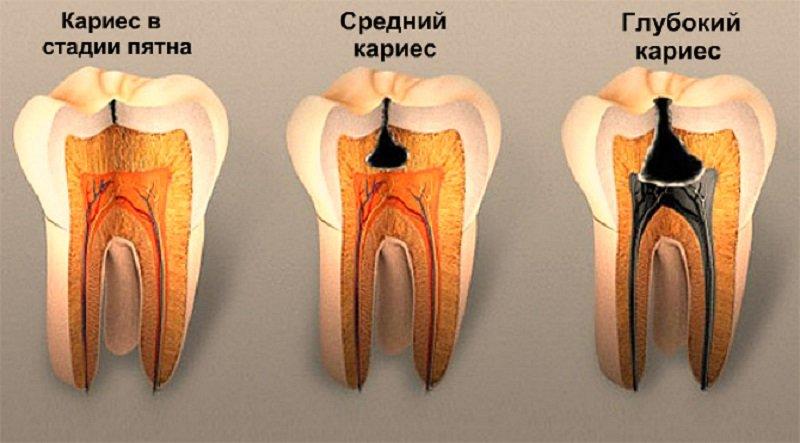 Przyczyny bólu zęba