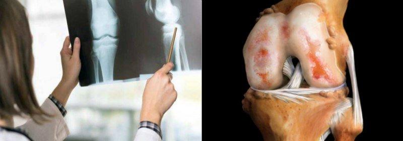 как восстановить хрящевую ткань