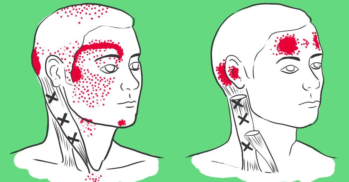 Мигрень : как снять боль. Как снять головную боль при мигрени
