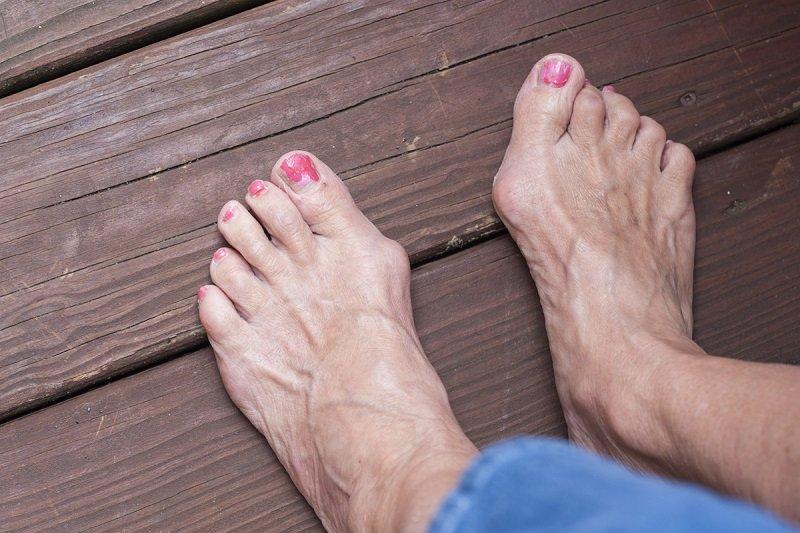косточка на пальце ноги