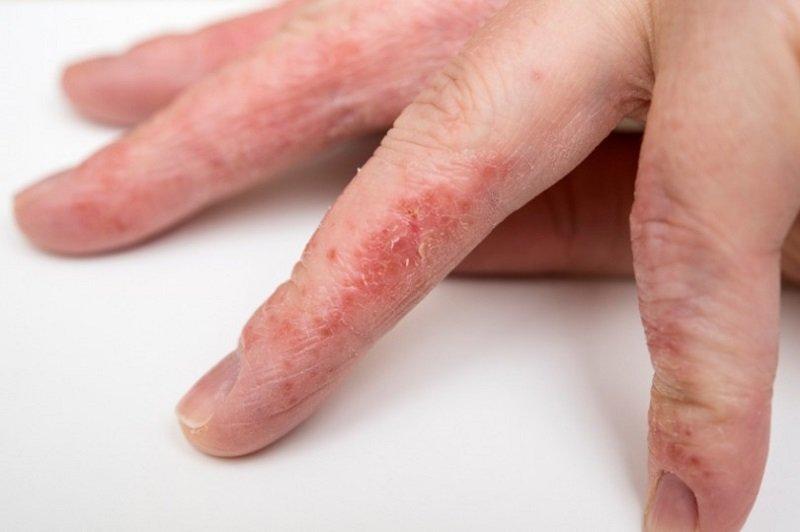 почему появляются трещины на коже