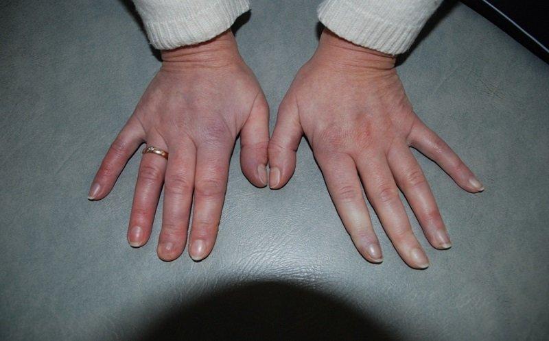 что такое синдром рейно