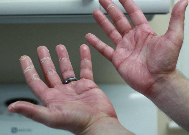 лечение синдрома рейно