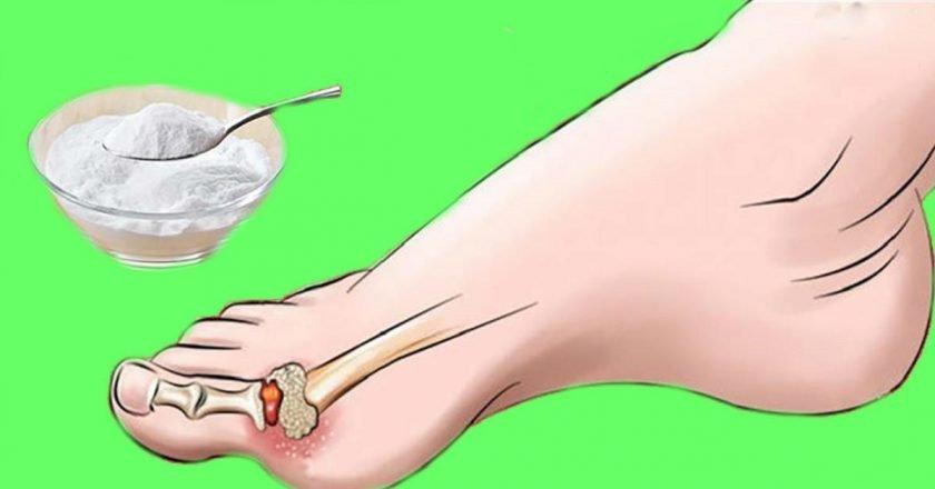 подагра и артрит одно и тоже