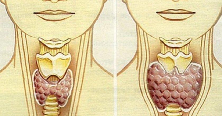 лечение щитовидки