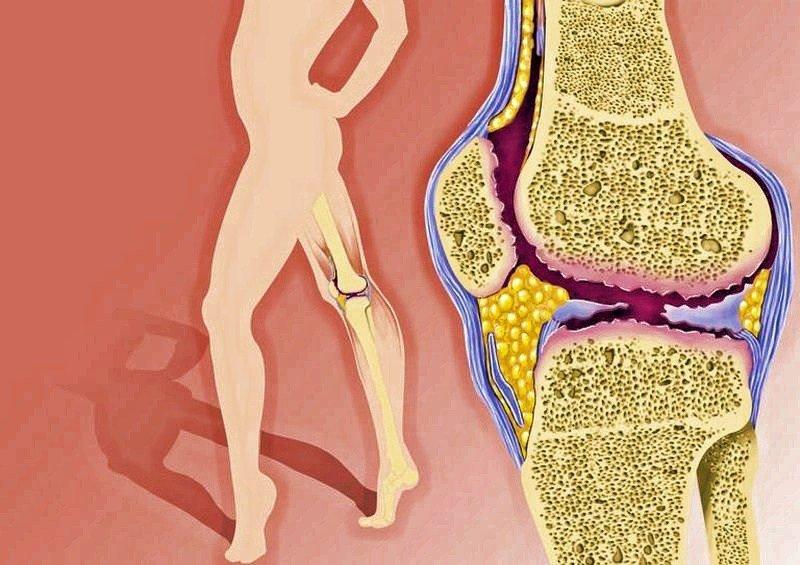 как лечить суставы