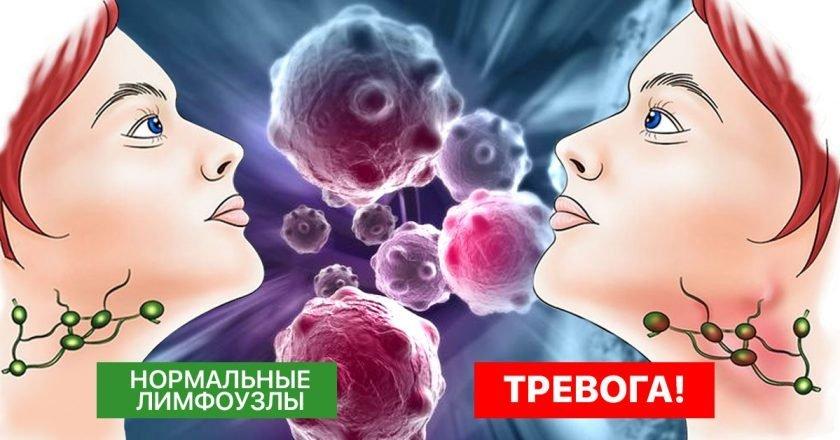как очистить лимфу