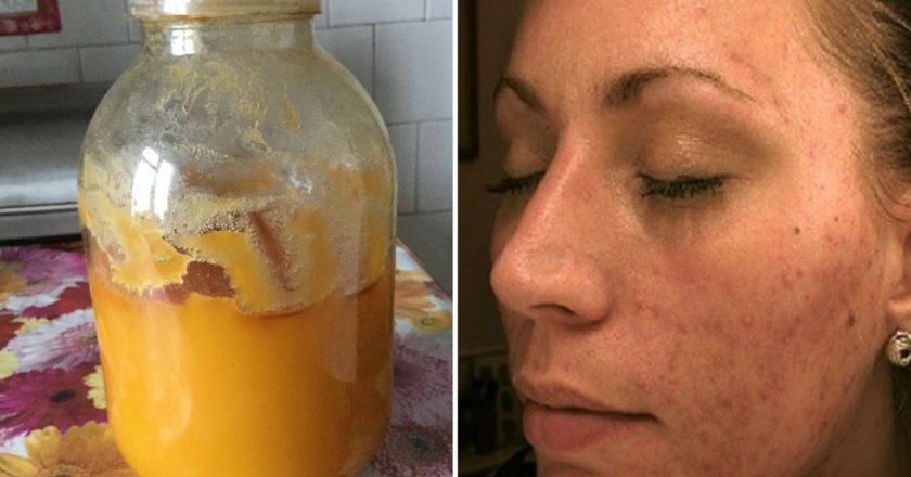 пилинг мёдом