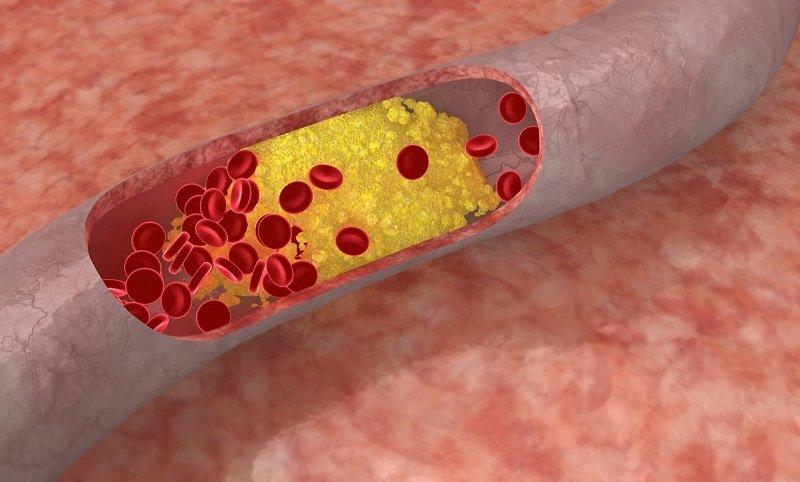 активированный уголь против холестерина
