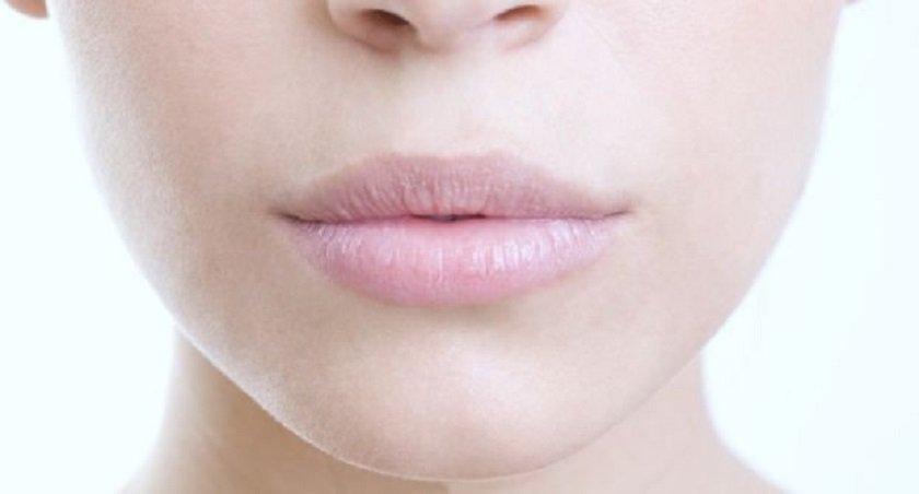 потрескавшиеся губы