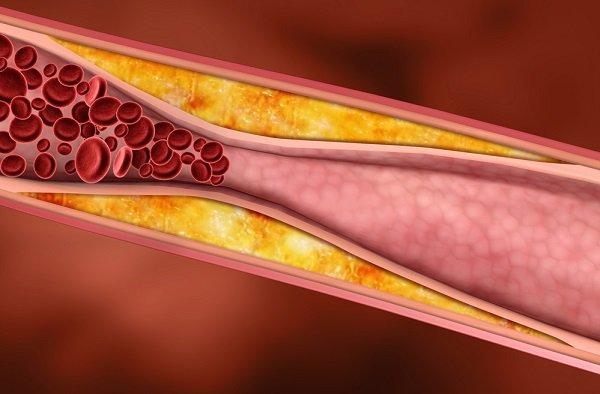 pravda o cholesterole