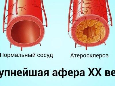 Правда о холестерине