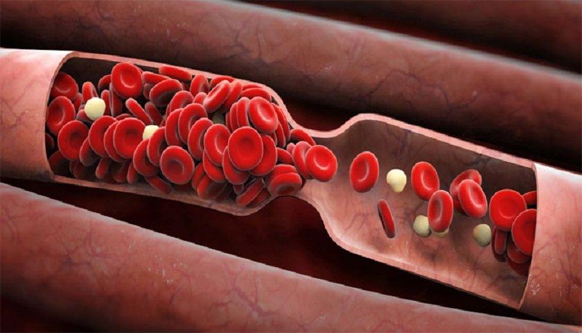 produkty zriedenia krvi