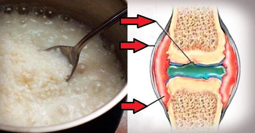 Рис суставов в каких медицинских учреждениях делают эндопротезирование коленных суставов