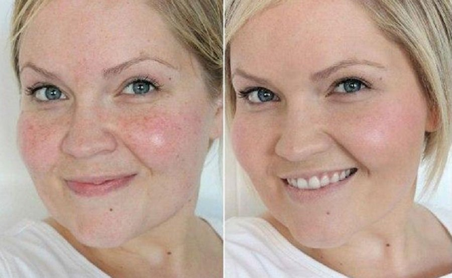 Как выровнять цвет кожи лица в домашних условиях