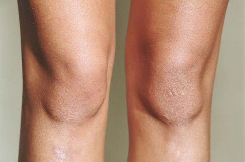 кожа на коленях