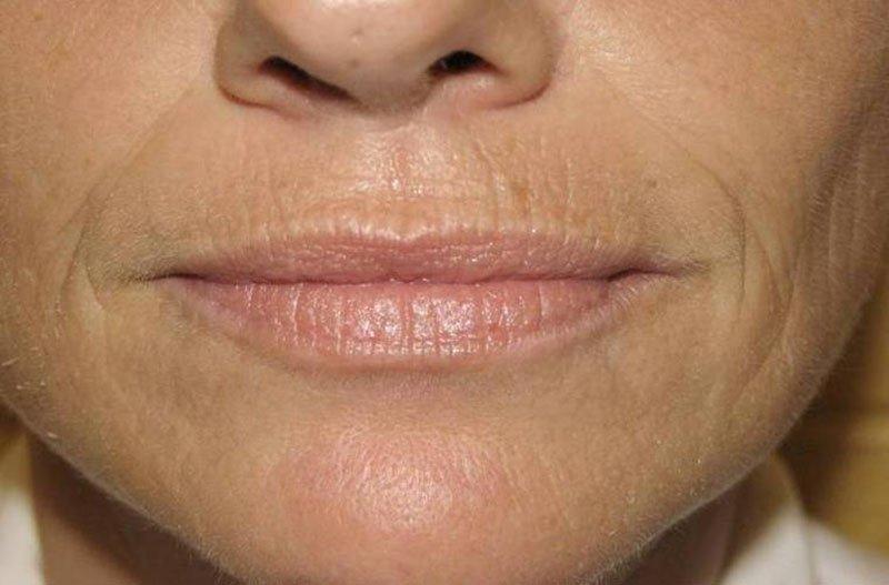 Морщины вокруг губ в домашних условиях